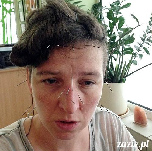 akupunktura_tradycyjna_medycyna_chinska_0k