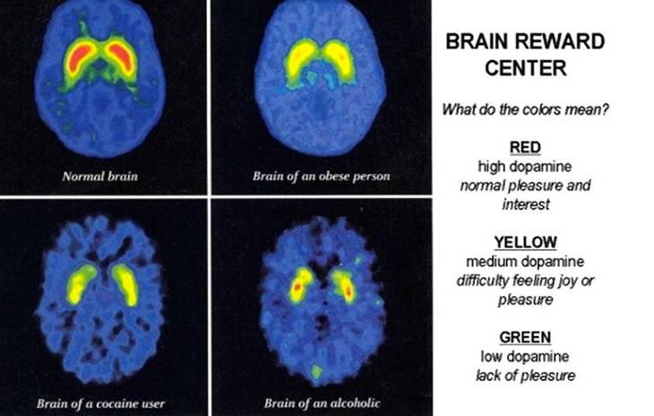 brain-addicition